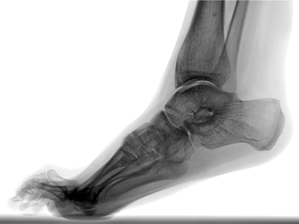 Equinus Deformity: A Source of Many Foot Pathologies!
